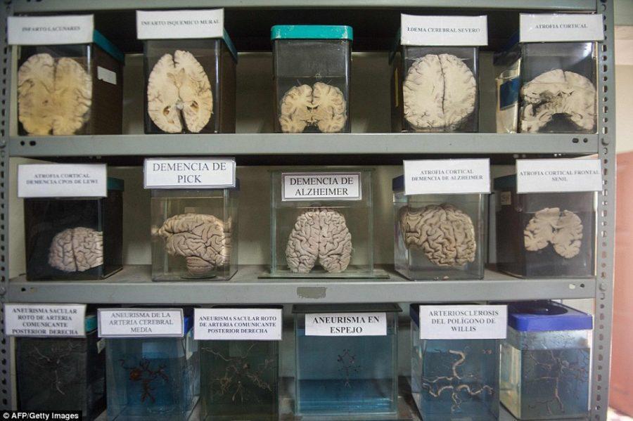 آشنایی با موزه عجیب مغز پرو