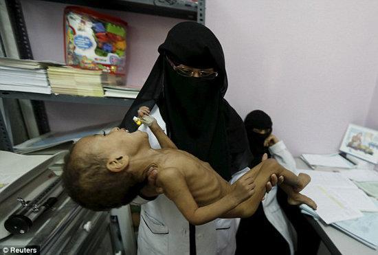 وزارت بهداشت یمن از مرگ یک کودک یمنی در هر 10 دقیقه به دلیل سوء تغذیه اطلاع داد
