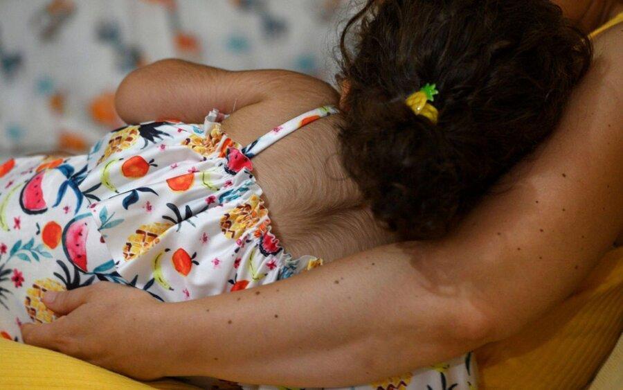 اشتباه دارویی در اسپانیا باعث نشانگان گرگ نما در نوزادان شد