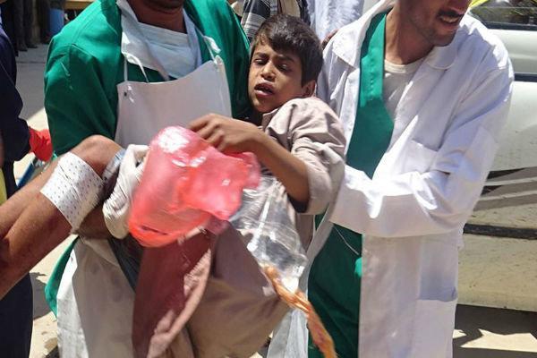 حملات توپخانه ای سعودی ها به الحدیده یمن، یک شهید و 11 زخمی