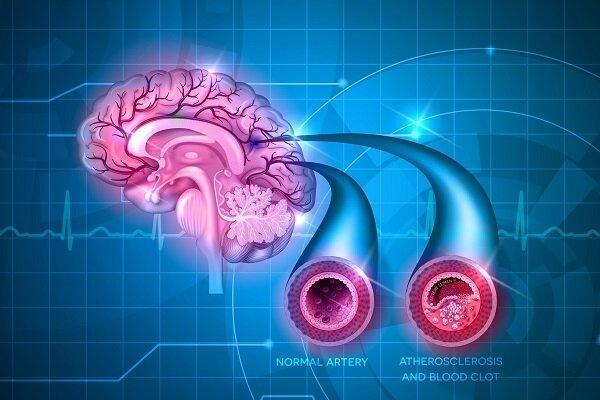 آزمایش خون سکته های مغزی مخفی را تشخیص می دهد