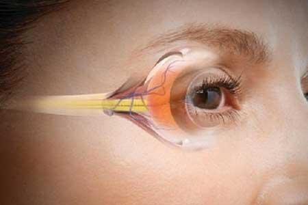 درمان نابینایی با هوش مصنوعی