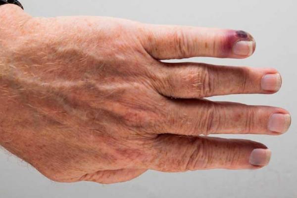 بیماری مرگبار سپسیس چیست؟