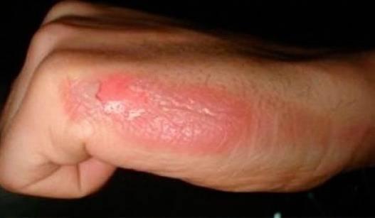 درمان تاول سوختگی پوست با چای کیسه ای